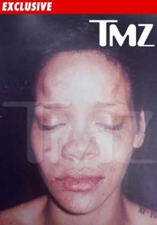 Rihanna's battered face