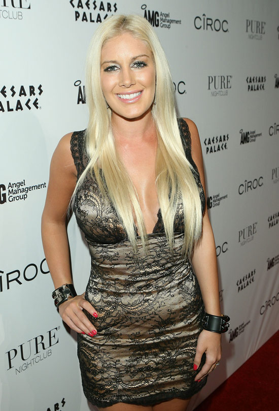 life and style heidi montag scars. Heidi Montag says she feels
