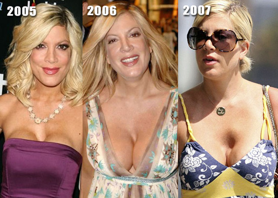 augmentation cleavage Breast