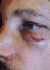 Gabriel Aubry's Battered & Bruised Face After Fight with Olivier Martinez
