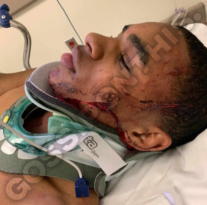 YBN Almighty Jay Pictured With Horrific Facial Injuries